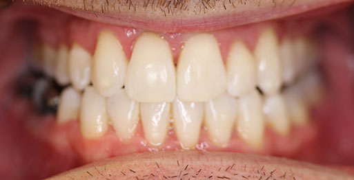 After Invisalign - Case 1