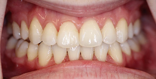 After Invisalign - Case 3